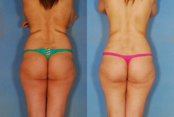 Liposuction of the Back and Flanks before 269398
