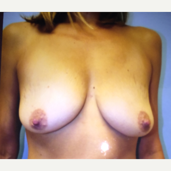 25-34 year old woman treated with Breast Augmentation before 3384521