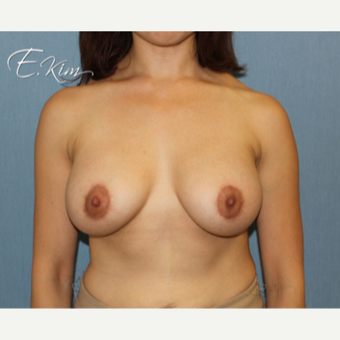 25-34 year old woman treated with Breast Lift with Implants after 3663374