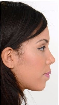 18-24 year old woman treated with Rhinoplasty after 3259242