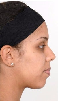 18-24 year old woman treated with Rhinoplasty before 3259242