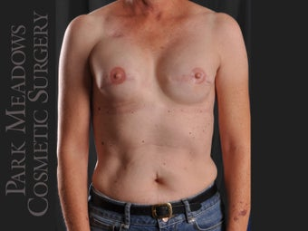 Bilateral mastectomy with tissue expanders; silicone implant exchange; fat grafting; nipple reconstruction; areola pigmentation