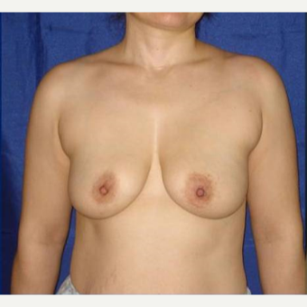 45-54 year old woman treated with Breast Lift with Implants before 3841779