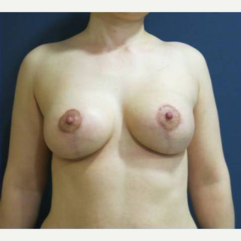 45-54 year old woman treated with Breast Lift with Implants after 3841779