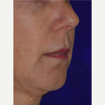 50 year old woman treated with Juvederm VOLBELLA before 3744403