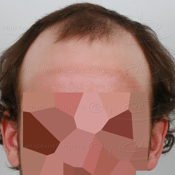 Dr Devroye - HTS Clinic - 2 FUT: 6103 grafts 13015 hairs - Result after 1 year post-op before 3162304