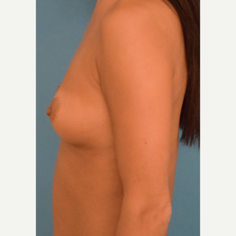 35-44 year old woman treated with Breast Augmentation before 3423659