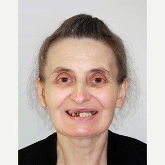 55-64 year old woman treated with All-on-4 Dental Implants before 1667462