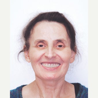 55-64 year old woman treated with All-on-4 Dental Implants after 1667462
