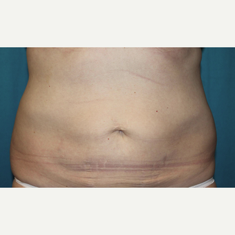 45-54 year old woman treated with CoolSculpting after 3027679
