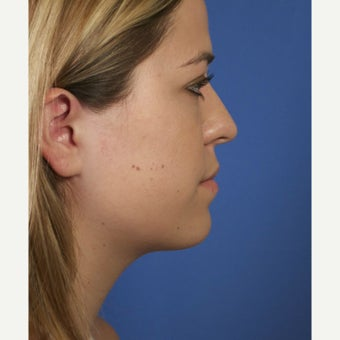 Neck Lipocontouring to Create a More Defined Jawline after 1544053