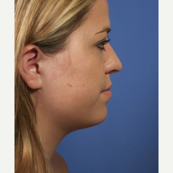 Neck Lipocontouring to Create a More Defined Jawline before 1544053