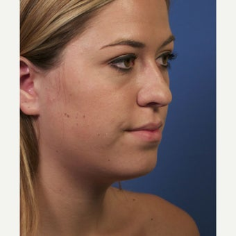 Neck Lipocontouring to Create a More Defined Jawline 1544053