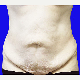 45-54 year old woman treated with Tummy Tuck before 3519913