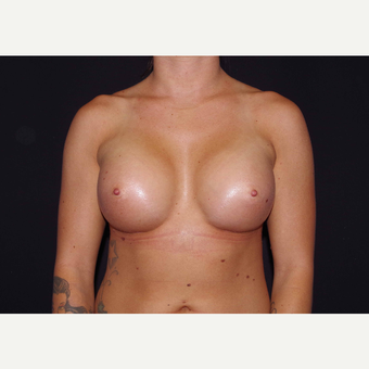 25-34 year old woman treated with Breast Implants after 3440968