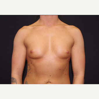 25-34 year old woman treated with Breast Implants before 3440968