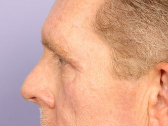 Eyelid Surgery after 280851