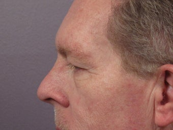Eyelid Surgery before 280851