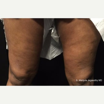 Tighten Thighs with Viora® Radiofrequency Laser before 1942308
