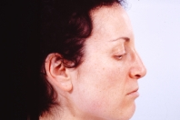 Rhinoplasty before 3446445