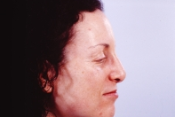 Rhinoplasty after 3446445