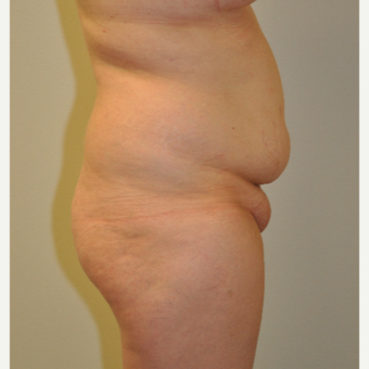 18-24 year old woman treated with Tummy Tuck before 3108964