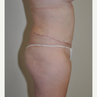 18-24 year old woman treated with Tummy Tuck after 3108964