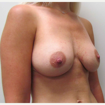 Breast Lift with Implants & Change from Saline to Silicone for this 26 Year Old Woman before 3003257