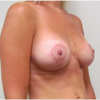 Breast Lift with Implants & Change from Saline to Silicone for this 26 Year Old Woman after 3003257