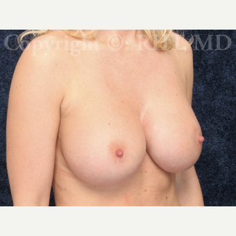 31 year old woman had cohesive silicone Breast Augmentation after 2797052