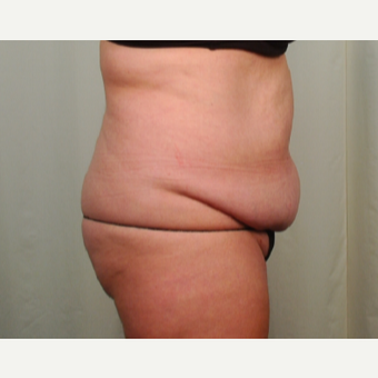 45-54 year old woman treated with Mini Tummy Tuck before 2696633