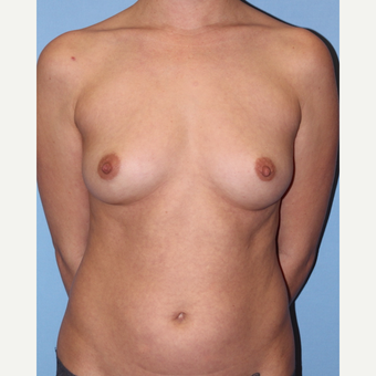 35-44 year old woman treated with Breast Augmentation before 3055562