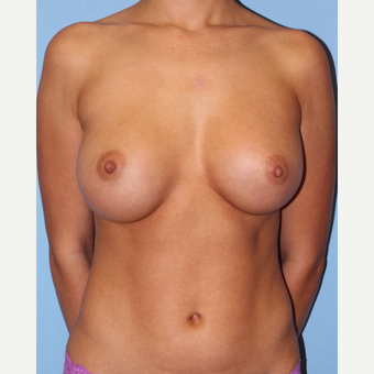 35-44 year old woman treated with Breast Augmentation after 3055562