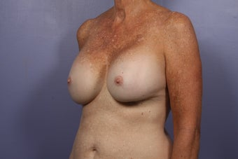 63 yr old Breast Revision before 957281