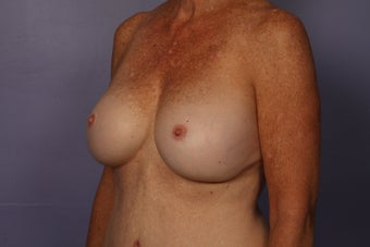 63 yr old Breast Revision after 957281