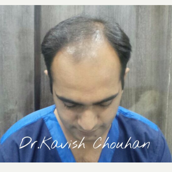 25-34 year old man treated with Hair Transplant before 2836771