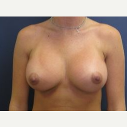 18-24 year old woman treated with Breast Augmentation after 2994055
