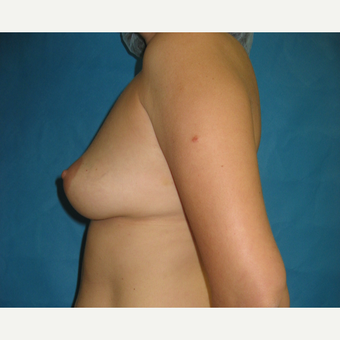 25-34 year old woman treated with Breast Augmentation before 3201147