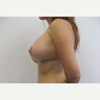 25-34 year old woman treated with Breast Augmentation after 3201147