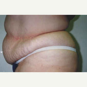 45-54 year old woman treated with Tummy Tuck before 3629322