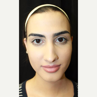 18-24 year old woman treated with Facial Feminization Surgery before 2747169