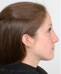 25-34 year old woman treated with Rhinoplasty after 3259318
