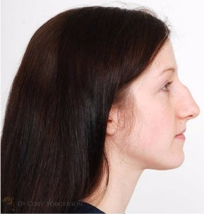 25-34 year old woman treated with Rhinoplasty before 3259318