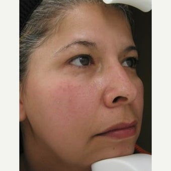 55-64 year old woman treated with Melasma Treatment after 2215269
