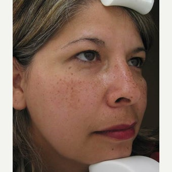 55-64 year old woman treated with Melasma Treatment before 2215269