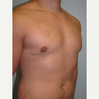 18-24 year old man treated with Male Breast Reduction after 3644001