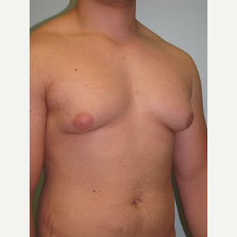18-24 year old man treated with Male Breast Reduction before 3644001