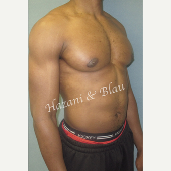 35-44 year old man treated with Male Breast Reduction after 3333028