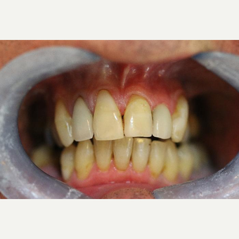 Replacement of white composite fillings after 3107218