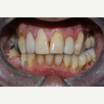Replacement of white composite fillings before 3107218